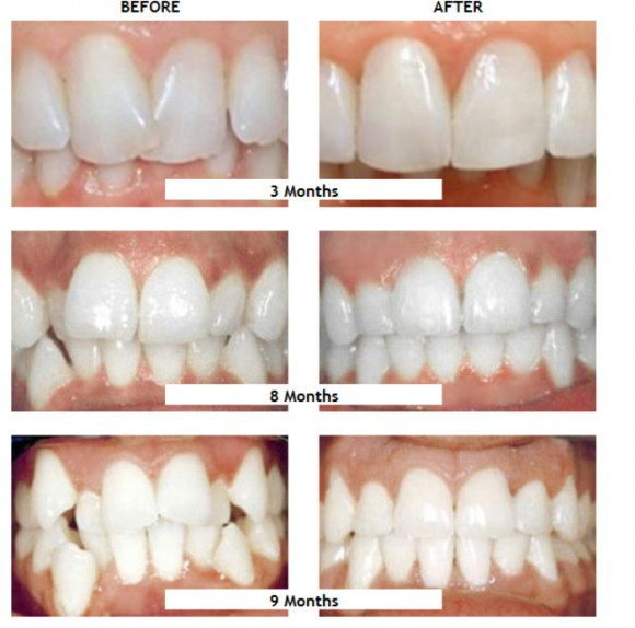 fastbraces-before-and-after